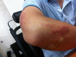 Curativo poderá ser utilizado em feridas de difícil cicatrização. Foto por Pixabay.